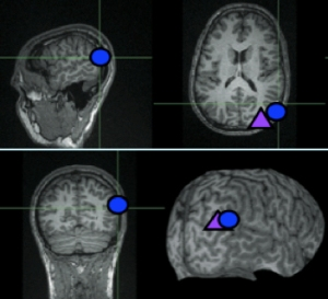 MRI brain scans showing the location of the right temporoparietal junction (blue circle). The purple triangle shows a nearby region that the researchers disrupted with magnetic stimulation as a control experiment. Images courtesy Rebecca Saxe laboratory, MIT